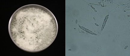 A pure isolate of Colletotrichum growing on agar that was isolated from cranberry.  Ascospores produced in the laboratory by a Colletotrichum species isolated from cranberry. (photo by Vinson Doyle)